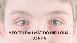 mẹo trị đau mắt đỏ hiệu quả tại nhà